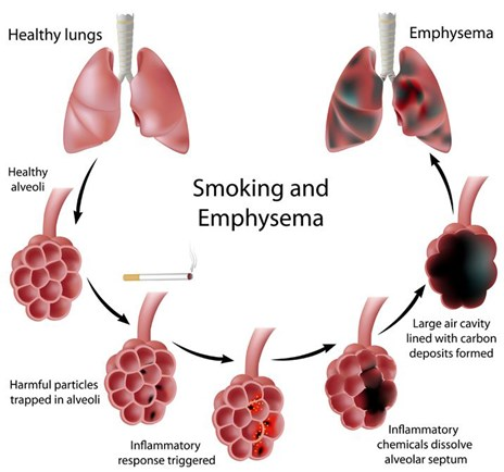 Emfizem Pulmonar efecte