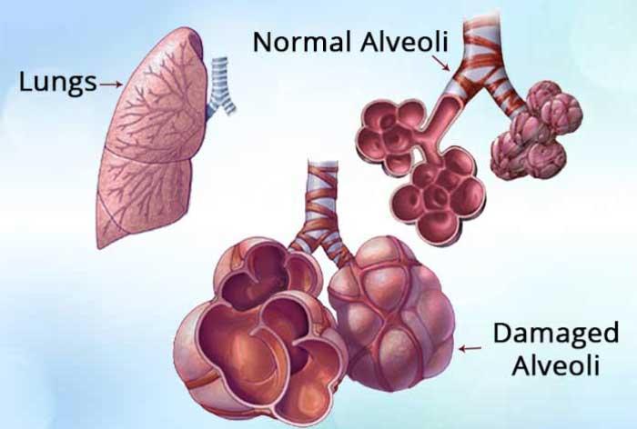 Emfizem-Pulmonar-pareri