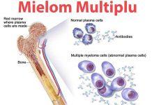 Mielomul-multiplu
