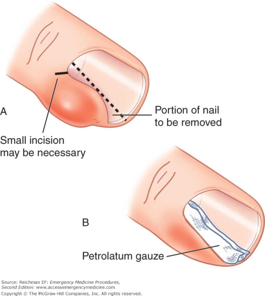 Paronichia-tratament