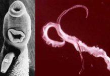 Schistosomiaza