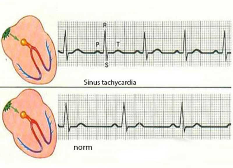Tahicardia-sinusală---Diagrama2