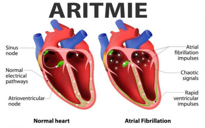 aritmie-tratament