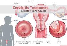 cervicit-trtament-cauze