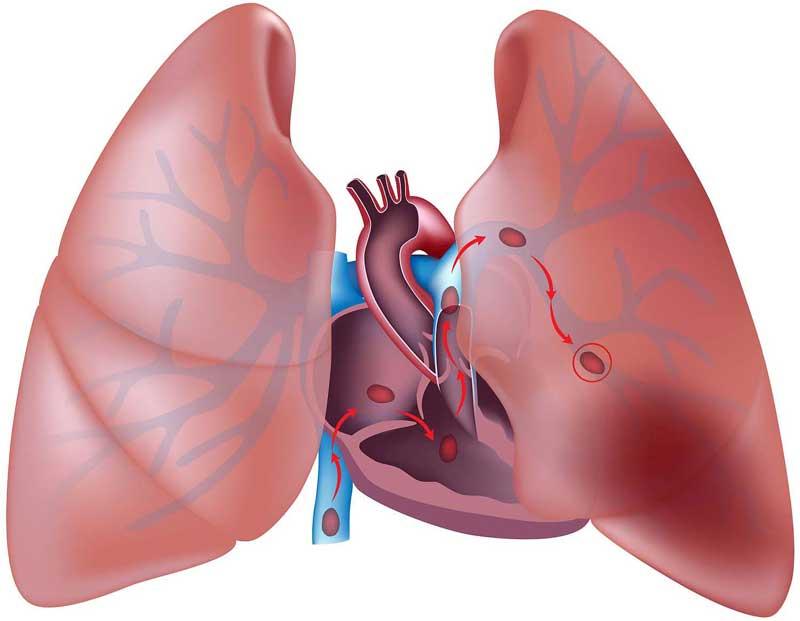embolism-pulmonar-foto