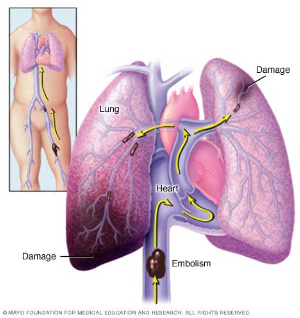 embolism-pulmonar-pareri