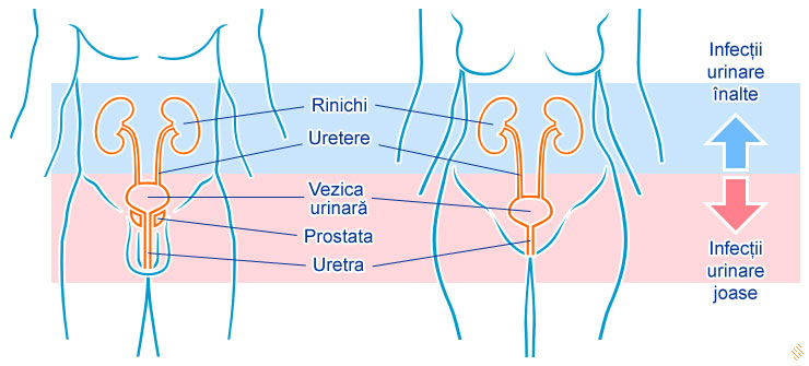 infectie-urinara
