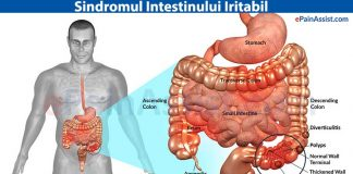 intestinul-iritabil-sindrom-forum