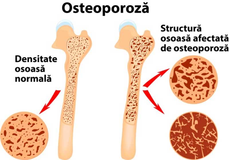 osteoporoza-tratament