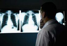 radiografie-tuberculoza
