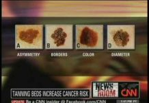 riscuri-solar-cancer-piele