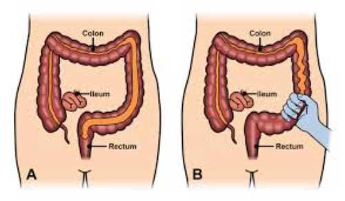 sindromul intestinului iritabil va provoca pierderea în greutate