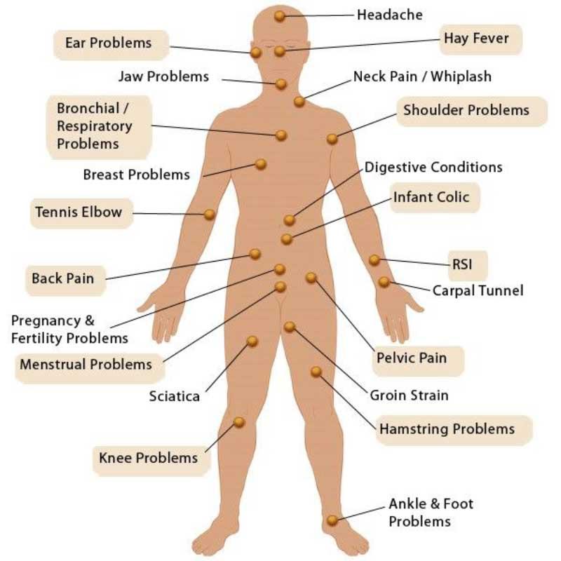 terapia-bowen-beneficii