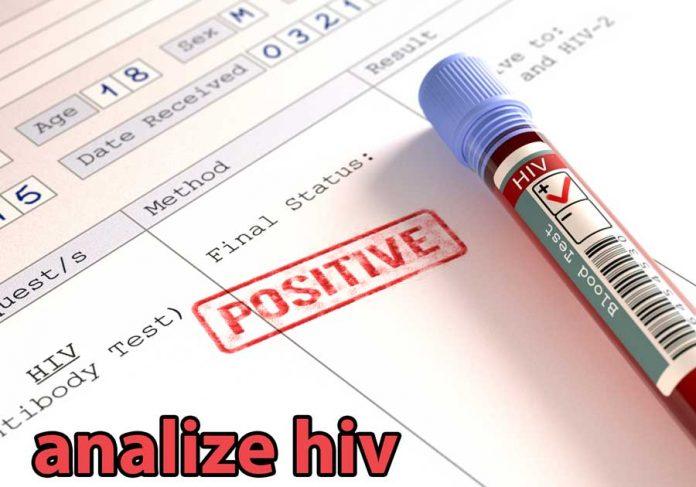 testare-hiv
