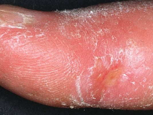 Acrodermatita