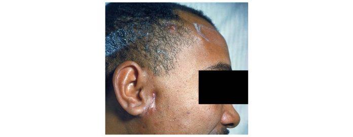 Actinomicoza faciala