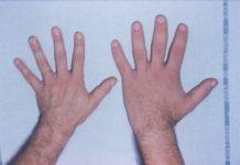 Bolnav de acromegalie