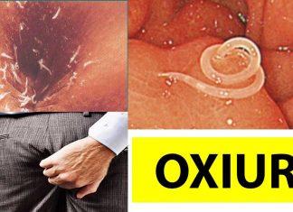 10 modalitati de a te trata de cistita in mod natural - eusuntmic.ro