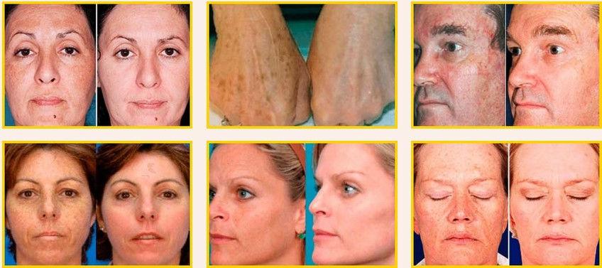Bright Skin Rezultate