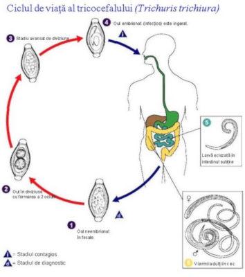 Tricocefaloza Cauze