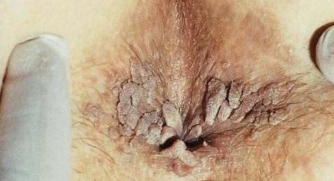 Tratamentul și prevenirea verucilor genitale Papilloma con cellule squamose