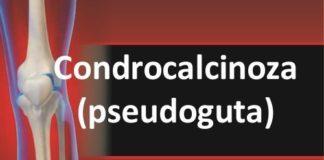 Condrocalcinoza cauze si simptome