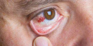 care-sunt-simptomele-conjunctivitei-hemoragice-si-cum-o-tratam