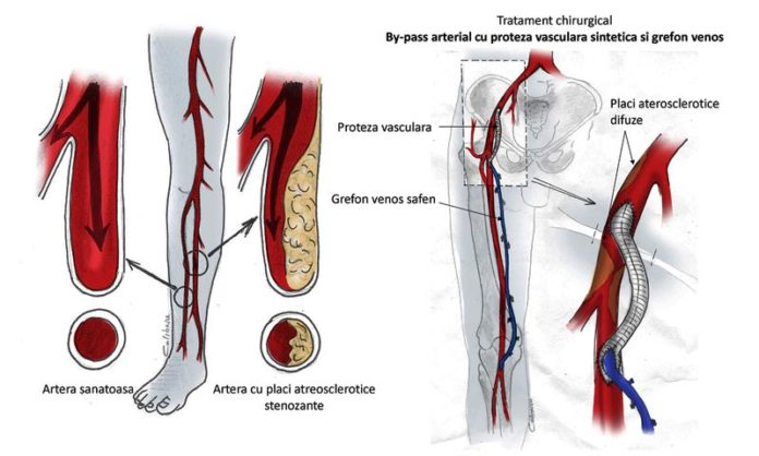 ce-este-ateroscleroza-obliteranta-si-cum-se-trateaza