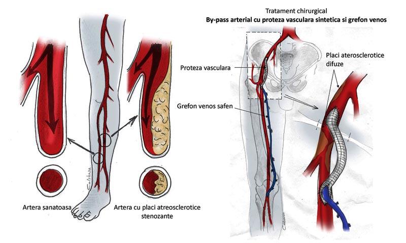 Ateroscleroza membrelor inferioare