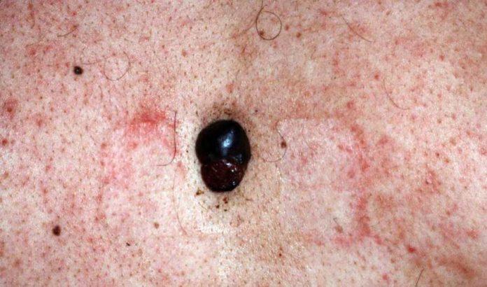 ce-este-melanomul-mamar-si-cum-se-trateaza