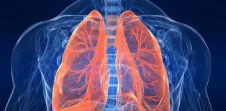 ce-este-pneumonia-de-aspiratie-si-cum-se-trateaza