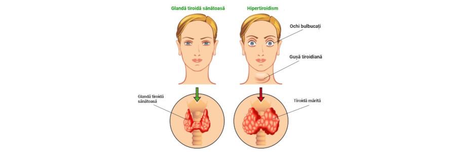 Thyrolin Capsule Efecte