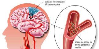ce-este-anevrismul-cerebral-si-ce-simptome-are