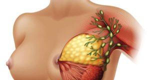 ganglioni-limfatici-mamari-anatomie