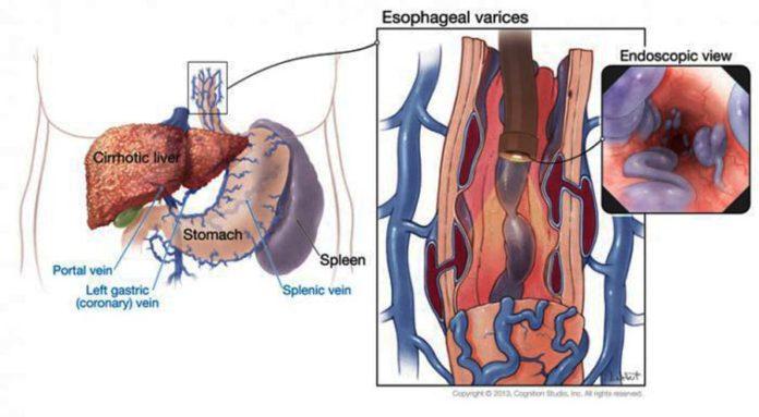 varicele-venoase-ale-esofagului