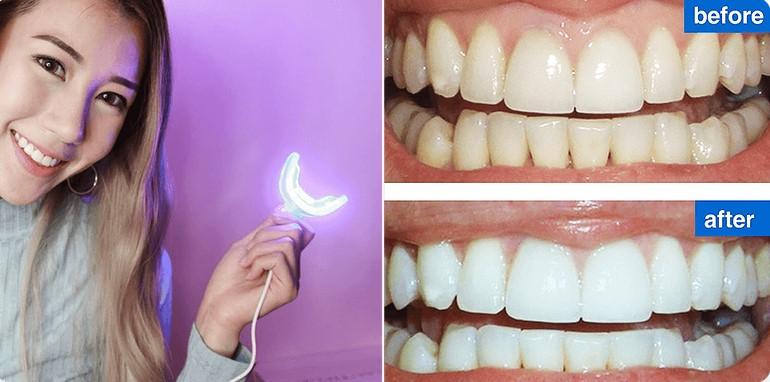 oral-care-rezultate